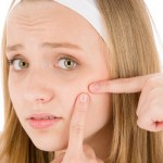 7 Surprising Reasons For Pimples