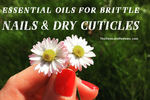 Top 6 Essential Oils For Strengthening Brittle Nails And Dry Cuticles